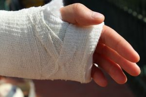 an injured hand